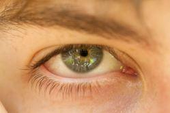 Curtis' Eye